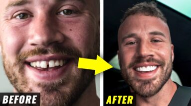 Fixing My Teeth After 31 Years (emotional)